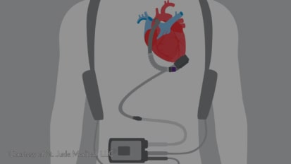 Evolving Therapies for Advanced Heart Failure