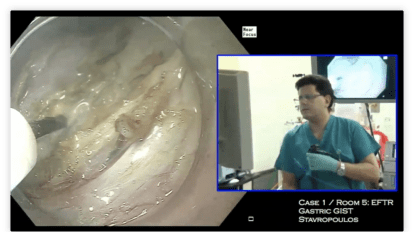 Gastric endoscopic full thickness resection of subepithelial tumor
