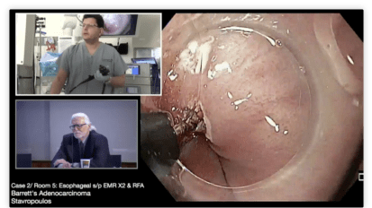Esophageal Endoscopic Submucosal Dissection