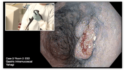 Gastric Endoscopic Submucosal Dissection