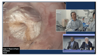 Per Oral Endoscopic Myotomy for Achalasia