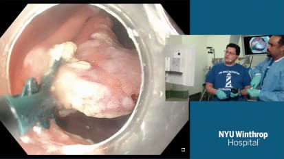 2018 LI Live: Live Endoscopic Procedures - Afternoon Part 1 of 2