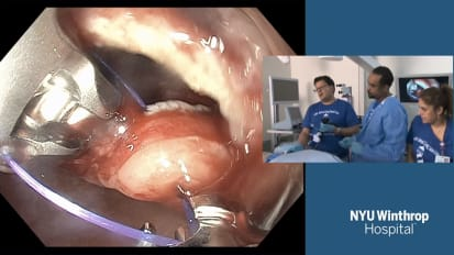 Gastric Per Oral Endoscopic Myotomy (G-POEM) for Gastroparesis Due to Post-Operative Vagus Nerve Injury