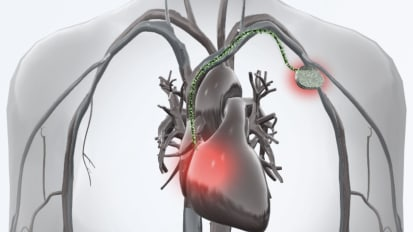Cardiac Device Infection