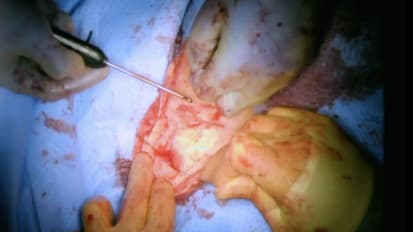 Endovascular Repair (EVAR) of Abdominal Aortic Aneurysm