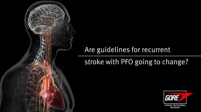Are PFO stroke guidelines expected to change?