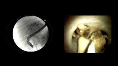 Performing ERCP with Stent Placement and Cholangioscopy by Neil Sharma, M.D., Fort Wayne, Indiana, U.S.A.