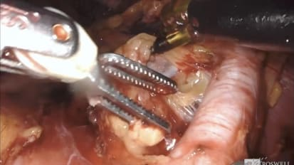Master Class on Bladder Cancer: Robot-Assisted Radical Cystectomy with Pelvic Lymph Node Dissection and Intracorporeal Ileal Conduit