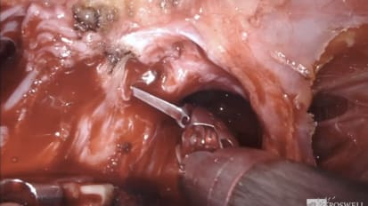 Day 1: Robot-Assisted Radical Cystoprostatectomy with Bilateral Lymph Node Dissection <br>Part 1:Cystectomy