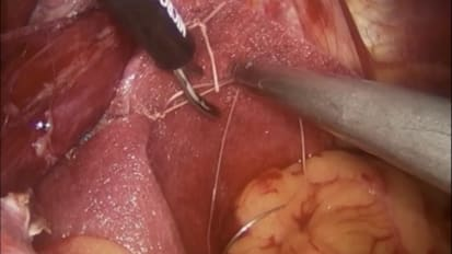 Paraesophageal Hernia Repair Using <br>GORE<sup>®</sup> BIO-A<sup>®</sup> Tissue Reinforcement