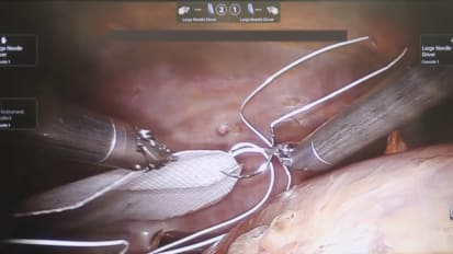Laparoscopic Fixation of GORE<sup>®</sup> SYNECOR Biomaterial in a Cadaver Model Using a Robotic Arm