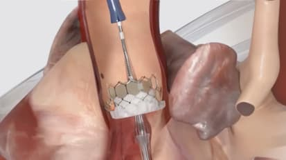 Tailoring Aortic Valve Treatments to the Patient