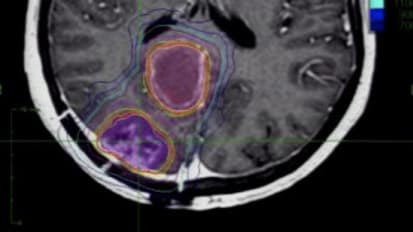 CNS Radiosurgery: Improving Outcome in Oligometastatic Disease