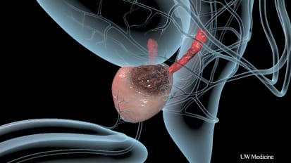 Progress in Prostate Cancer Appears to Slow
