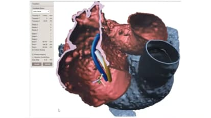 3D Printing and Virtual Planning for Clinical Care Innovation