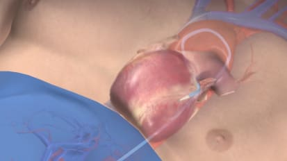 Innovations in heart valve treatments through TAVR/TAVI technology