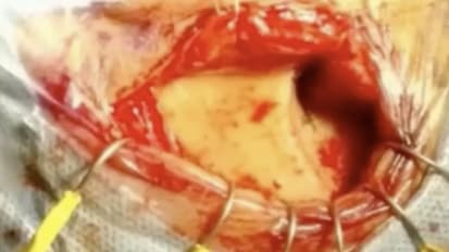 Supraorbital Keyhole Approach for Resection of Midbrain Tumor