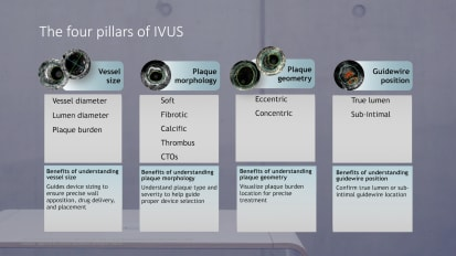IVUS four pillars PAD