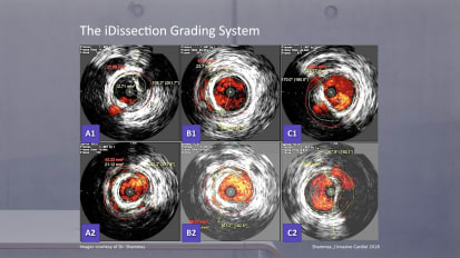 IVUS dissection PAD