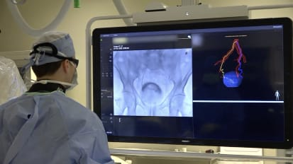 Interventional Radiology: Prostate Artery Embolization