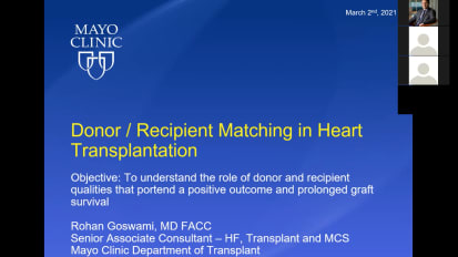 Donor selection strategy for heart transplantation