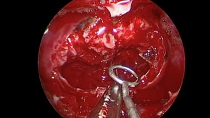 Surgical Resection of a Large Pituitary Adenoma