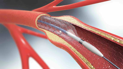 Carotid Endarterectomy and Stenting