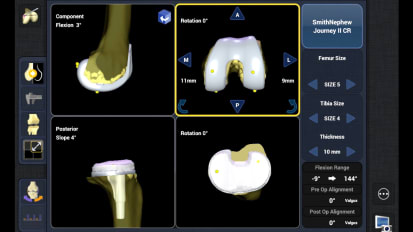 NAVIO 7 TKA Measure Resection Workflow (Tibia Cut First Option)