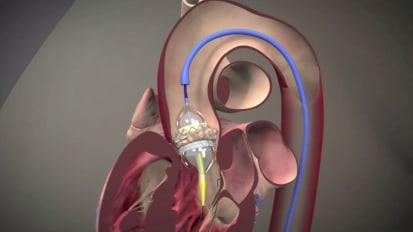 TAVR: An option for inoperable aortic stenosis
