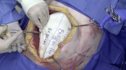 Retromuscular hernia repair using GORE<sup>®</sup> ENFORM Preperitoneal Biomaterial with percutaneous suture fixation
