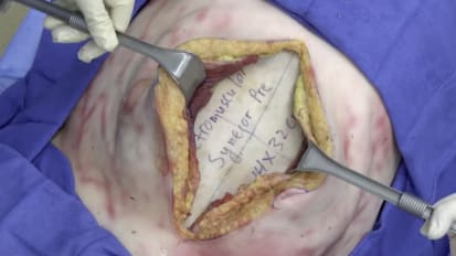 Retromuscular hernia repair using GORE<sup>®</sup> SYNECOR Preperitoneal Biomaterial with transfascial suture fixation [Full Version]
