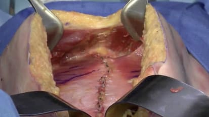 Retromuscular hernia repair using GORE<sup>®</sup> SYNECOR Preperitoneal Biomaterial with transfascial suture fixation