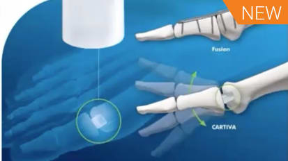 Surgical Treatment of Hallux Rigidus: Arthroplasty featuring CARTIVA® [AP-014122]