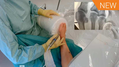 15 Minute Fellowship: MIS Hallux Valgus Surgery and Hammer Toe Correction [016441]