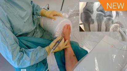 Minimally Invasive Surgery - VLC