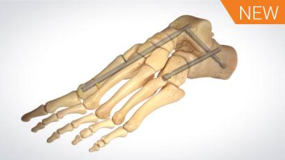 SALVATION™ 2 Midfoot Nail (Medial Column Fusion) Animation [AP-010997]