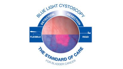 KARL STORZ Blue Light Cystoscopy with Cysview® System Brochure*