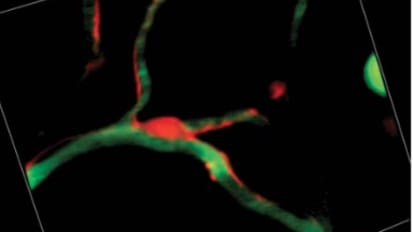 Advanced Imaging of Intact Brains During Ischemic Stroke Reveals a New Role for Pericytesa