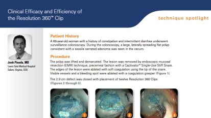 Clinical Efficacy and Efficiency of the Resolution 360™ Clip Presented by John Pineda, MD