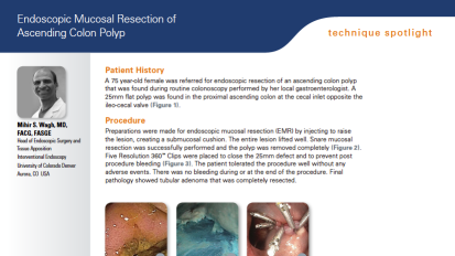 EMR of Ascending Colon Polyp Presented by Mihir Wagh, MD, FACG, FASGE