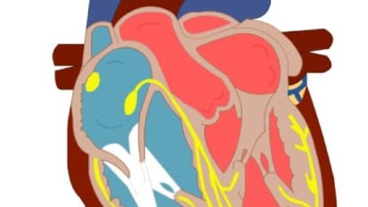 Illuminating Research Focuses on Surgery for Rare Heart Valve Infection