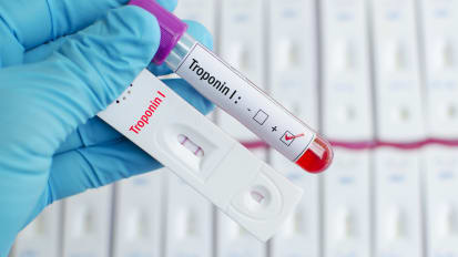 Troponin Testing for Clinicians