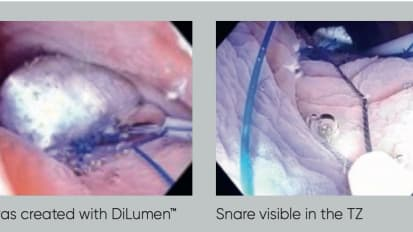 DiLumen™ - Assisted Colonic Underwater Endoscopic Mucosal Resection: Clinical Case Report
