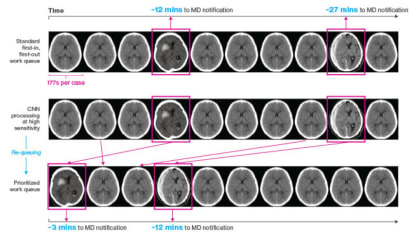 Study Shows How Artificial Intelligence Helped Detect Acute Neurological Cases Earlier