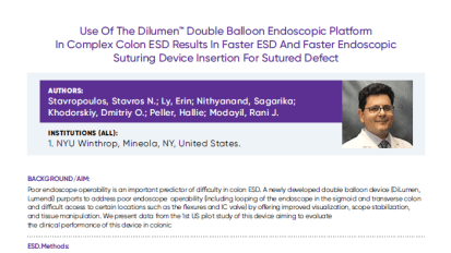 Case Study: Use Of The Dilumen™ Double Balloon Endoscopic Platform In Complex Colon ESD Results In Faster ESD And Faster Endoscopic Suturing Device Insertion For Sutured Defect