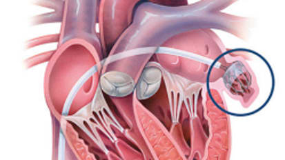 Atrial Fibrillation: Saying Goodbye to Blood Thinners