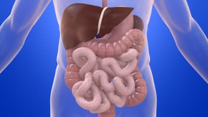 Chromoendoscopy for Inflammatory Bowel Disease