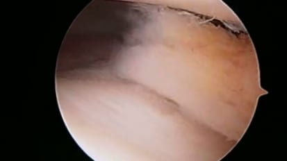 Knee Arthroscopy: Day of Surgery