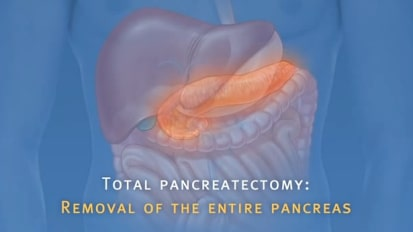 Pancreatic Auto Islet Transplantation with Total Pancreatectomy
