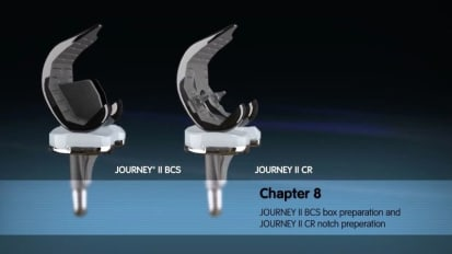 JOURNEY II Active Knee Solutions - Chapter 8